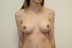 BBA Case 1 - Post Op breast enlargement