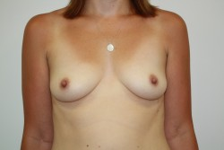 BBA Case 2 - Before breast enlargement