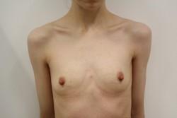 BBA Case 1 - Pre Op breast enlargement