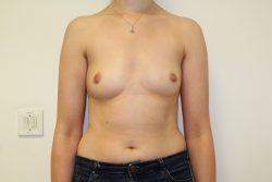 Before breast enlargement