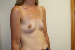 Case 9 - Before breast enlargement