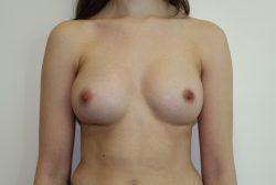 After breast enlargement