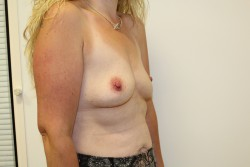 Case 8 Before breast enlargement