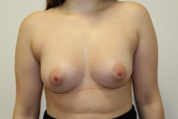 BBA Case 3 - After breast enlargement