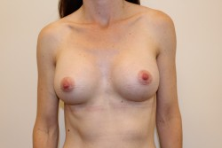 Case 7 - After breast enlargement