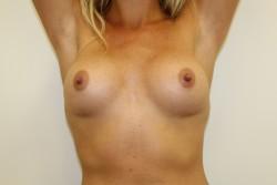 Case 4 - Post Op breast enlargement