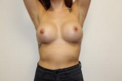 Case 6 - Post Op breast enlargement
