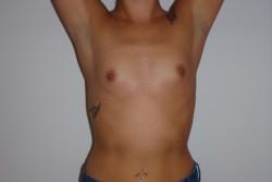 Case 6 - Pre Op breast enlargement