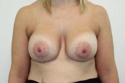 Case 5 - Post Op breast enlargement
