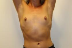 Case 4 - Pre Op breast enlargement