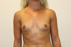 Case 4 - Before breast enlargement