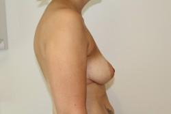 Case 5 - Pre Op breast enlargement