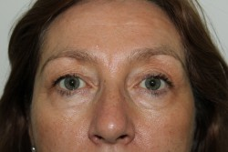 Upper & lower blepharoplasty - Before