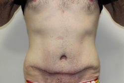 After Abdominoplasty and liposuction results