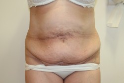 Pre op Abdominoplasty and liposuction