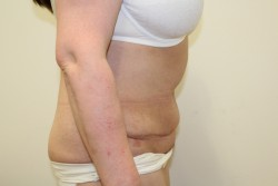 Post op Abdominoplasty and liposuction results