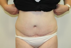 Case 1 - Post Op Abdominoplasty and liposuction results
