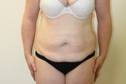 Case 1 - Pre Op Abdominoplasty and liposuction