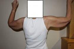 Before brachioplasty back