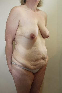Before Fleur-de-Lys abdominoplasty