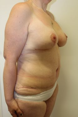After Fleur-de-Lys abdominoplasty