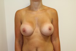 BBA Case 2 - After breast enlargement