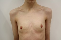BBA Case 1 - Pre Op breast enlargement