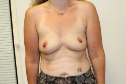Case 8 - before breast enlargement