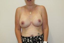 Case 8 - After breast enlargement