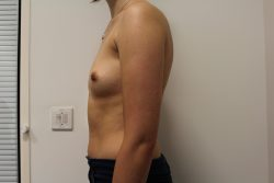 Before breast enlargement