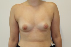 BBA Case 3 - Before breast enlargement