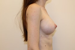 Case 7 - After breast enlargement