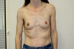 Case 7 - Before breast enlargement
