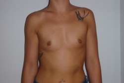 Case 6 - Pre Op breast enlargement