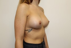 Case 6 - Post Op breast enlargement