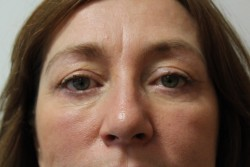 Upper & lower blepharoplasty results - After
