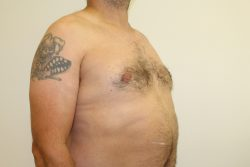 After male breast correction