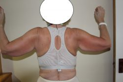 Before brachioplasty