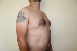 Before male breast correction