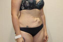 Before abdominoplasty