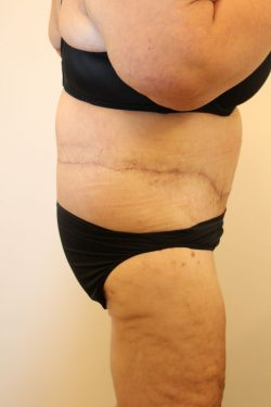 After circumferential body lift