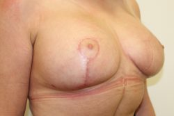 After breast enlargement with lift