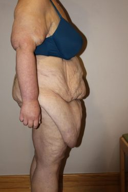 Before circumferential body lift