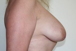 Before breast enlargement with lift